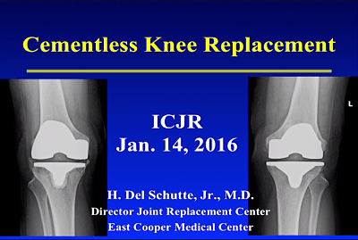 Cementless Fixation: A New Gold Standard for TKA