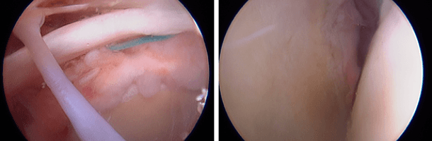d10687a19ea0 ... describe the rationale and surgical technique for using a subacromial  balloon spacer in patients with large to massive irreparable rotator cuff  tears.