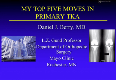 SURGICAL PEARLS: Tips and Techniques for Primary TKA from Dr  Daniel