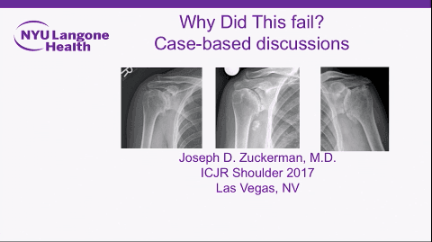 Lessons Learned from Failed Total Shoulder Arthroplasty