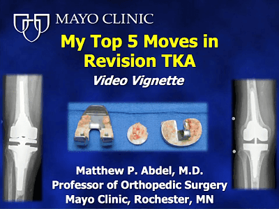 Dr  Matthew Abdel's Tips and Techniques for Revision TKA